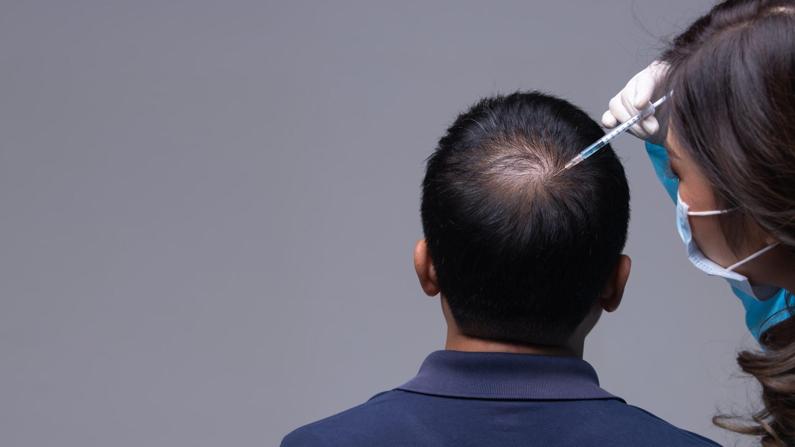 Tratament impotriva caderii parului pentru barbati